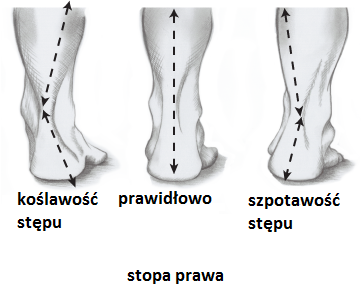 prawidłowe ułożenie stopy względem golenii