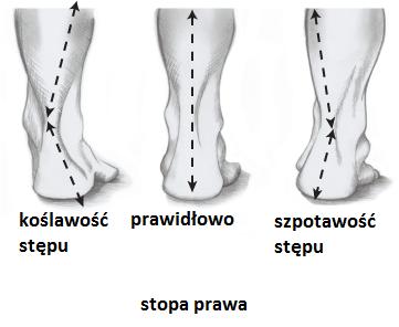 nieprawidłowości stopy