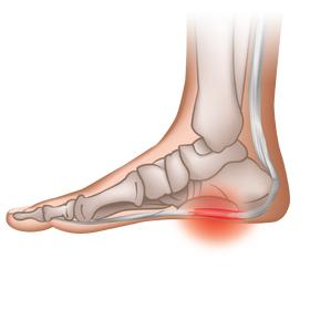 ból-stóp-zapalenie-rozcięgna-podeszwowego