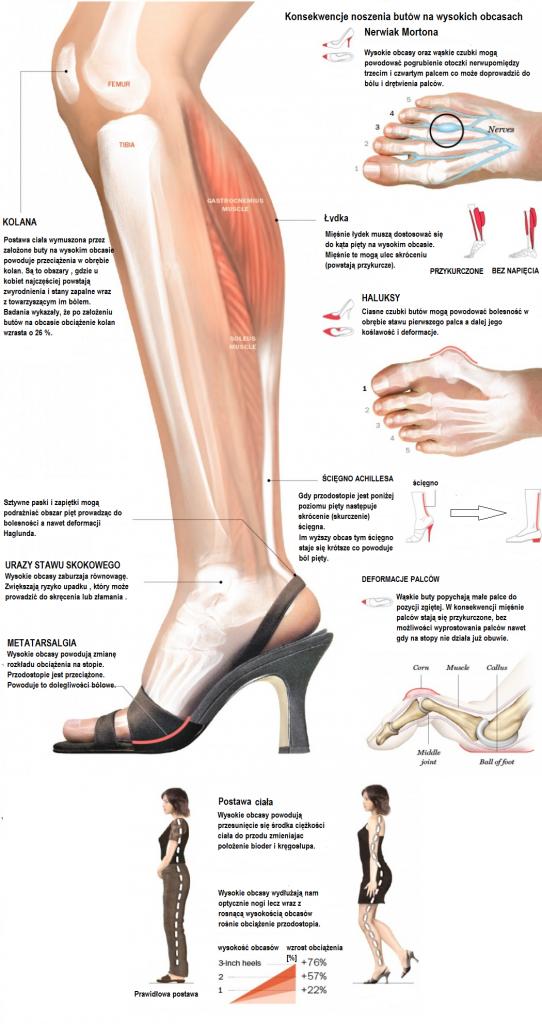 skutki noszenia butów na wysokich obcasach