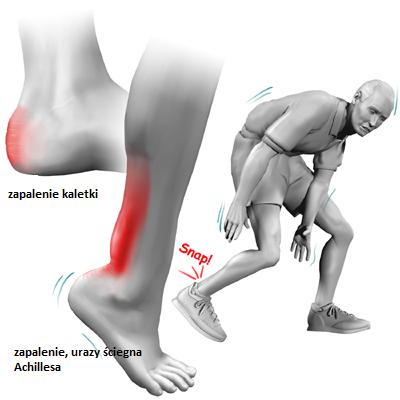 ścięgno Achillesa ból