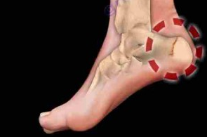 złamanie przeciążeniowe kości piętowej